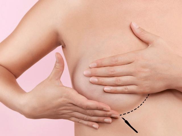 les-cicatrices-mammaires-min